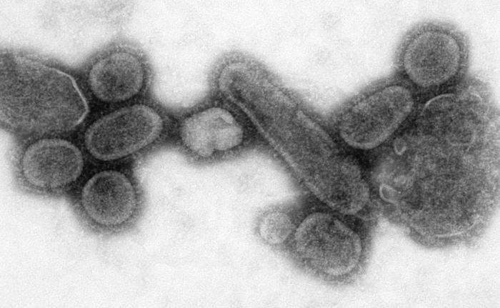 reconstructed-spanish-flu-virus